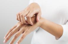 Імпетиго: причини, види, симптоми, лікування, народні методи