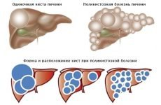 Кіста печінки: що це таке, причини виникнення, симптоми і лікування