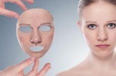 Підшкірні прищі на обличчі (як шишка): причини, як позбутися (прибрати) від внутрішніх прищів швидко