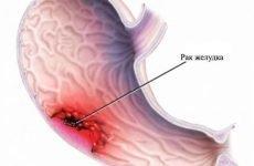 Аналіз калу на приховану кров: що показує дослідження, розшифровка тесту