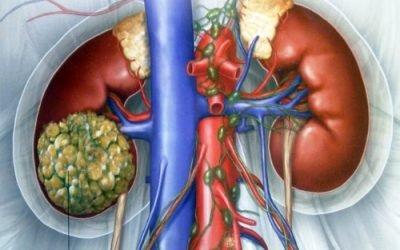 Рак нирки 4 ступеня з метастазами — скільки живуть з пухлиною