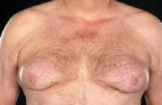 Молочні залози у чоловіків: причини, симптоми, рак залоз