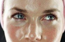 Жирна шкіра обличчя і прищі – що робити, як боротися, ніж лікувати