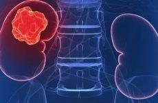 Прогнози медиків після видалення раку нирки