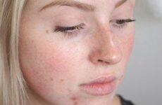 Як позбутися від прищів на обличчі у підлітка, причини їх появи; як лікувати висипання
