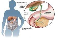 Видалення каменів з жовчного міхура: дроблення, операція, дієта