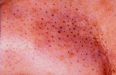 Підшкірні комедони на обличчі й тілі: причини виникнення, варіанти лікування