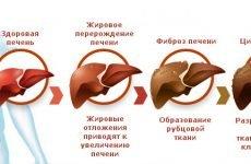 Жовчогінні трави: список лікарських рослин, користь і шкоду, застосування