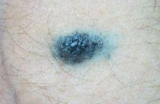 Синій невус (блакитний): причини та відгуки