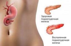 Кисло в роті: причини і лікування відчуття кислого присмаку після їжі