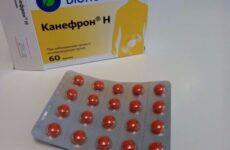 Канефрон: сечогінний чи ні препарат, як діють таблетки – сечогінний засіб