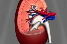 Каликоэктазия нирок — що це таке | Хвороба правої і лівої нирки