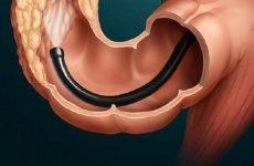 Правила проведення ректоскопии і можливі наслідки процедури