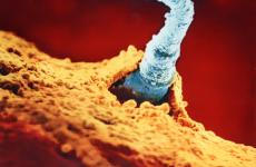 Будова сперматозоїда: функції, склад, будова, життєвий цикл