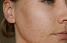 Як прибрати сліди від прищів, шрами і рубці на шкірі обличчя за допомогою народних засобів в домашніх умовах