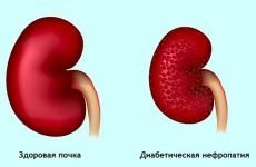 Нирковий діабет: що це таке, симптоми ниркового сольового діабету, аналіз сечі на діабетичну нирку