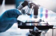 Лецитиновые зерна в секреті простати аналіз показання лікування профілактика