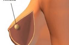 Ліпома в грудях: видаляти чи ні, лікування
