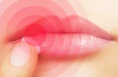 Мазь від герпесу на губах: противірусні та допоміжні мазі