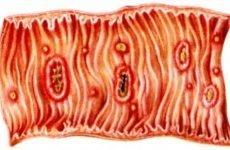 Амебіаз кишечника: що це таке, симптоми, лікування