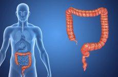 Ознаки ендометріозу в кишечнику і способи лікування патології