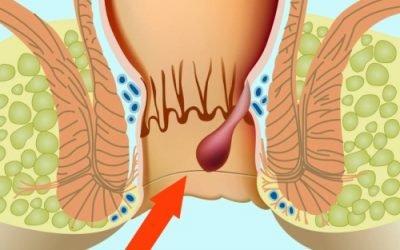 Як можна швидко і ефективно вилікувати внутрішній геморой