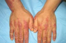 Дерматоміозит: симптоми, класифікація, лікування, профілактика