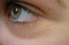 Видалення білих цяток на обличчі: як називаються, як прибрати білі крапки на обличчі і підборідді