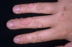 Як позбутися від бородавок на руках: фото, лікування, народні методи