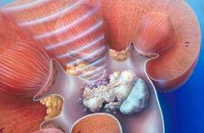 Мікроліти в нирках — що це таке, методи лікування