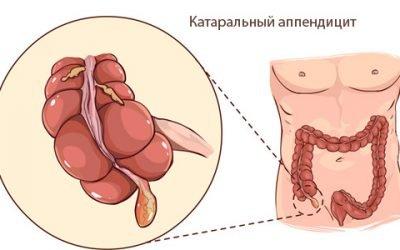 Причини, клінічні прояви та лікування катарального апендициту