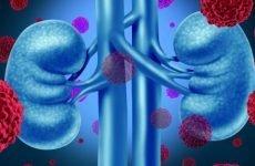 Світлоклітинний рак нирки: прогноз після видалення