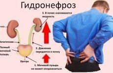 Гідронефроз: операція пиелопластика, бактерії в сечі при поганих аналізах, післяопераційний період і наслідки захворювання