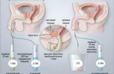 Які здати аналізи на простатит секрет урина додатково діагностика рекомендації