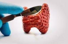 Щитовидна залоза в чоловіків: симптоми захворювання, профілактика