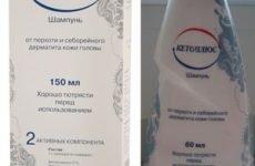 Лікувальні та ефективні шампуні проти псоріазу на голові: спосіб застосування та дія, яку краще вибрати
