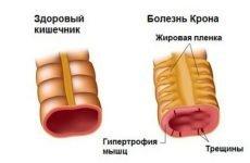 Можливі причини і характерні симптоми хвороби Крона