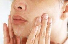 Прищі на обличчі і спині – причини появи, як і чим лікувати