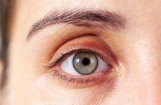Жировик на столітті і під очима: як позбутися. Як прибрати жировик на оці. Видалення жировик навколо очей