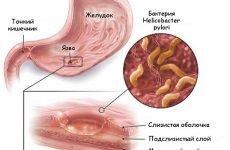 Лікування гастриту і виразки шлунка: препарати, список