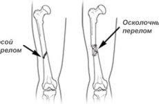 Закритий перелом стегна: види, симптоми, причини, методи діагностики та лікування