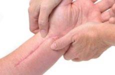 Скільки видів загоєння ран існує: первинне і вторинне натяг, загоєння рани під струпом