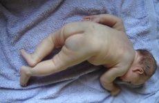 Родима пляма у новонародженого: види і причини