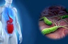 Захворювання дванадцятипалої кишки: симптоми хвороб, лікування, ознаки