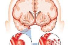 Геморагічний інсульт (крововилив в мозок) головного мозку: діагностика, лікування, причини, симптоми і прогноз одужання