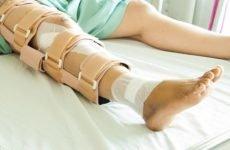 Перелом малогомілкової кістки без зміщення: характеристика травми