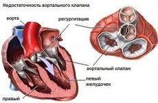 Діагностика та лікування аортальної регургітації