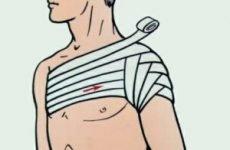 Колосовидная пов'язка на плечовий суглоб: техніка накладання, строки використання