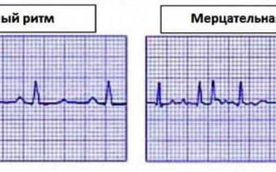 Лікування миготливої аритмії серця народними засобами