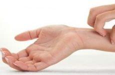 Екзема на руках: причини і лікування. Як і чим лікувати і вилікувати екзему на руках назавжди